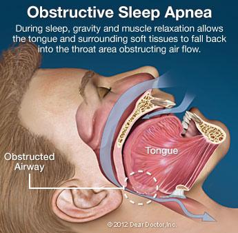 Sleep Apnea Bakersfield