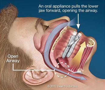 oral-appliance-mouthguard